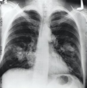 photo of an xray